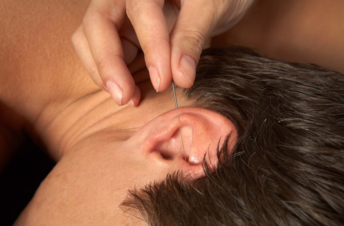 Acupuncture - Acupuncture NI