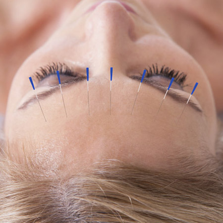 Facial Acupuncture - Acupuncture NI